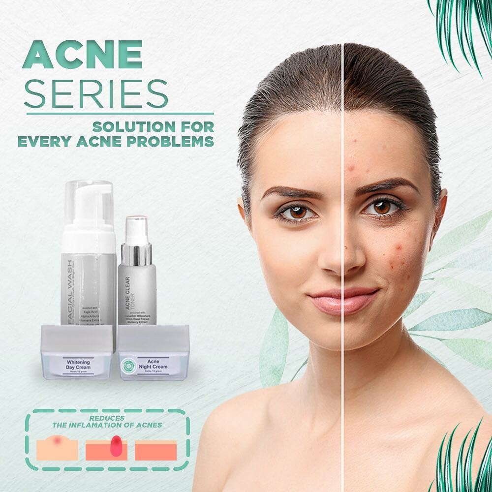 ms glow acne series