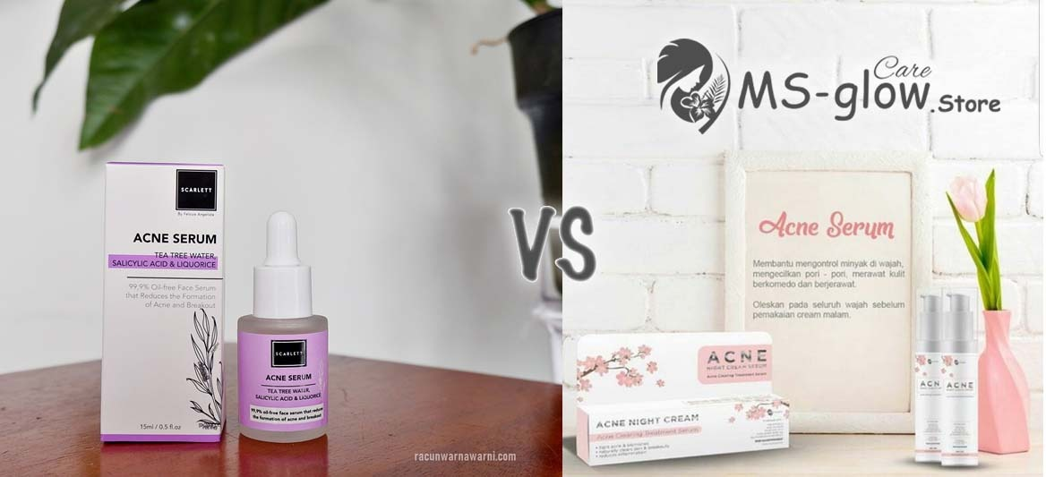 SCARLETT Whitening Acne Serum VS MS GLOW Acne Serum