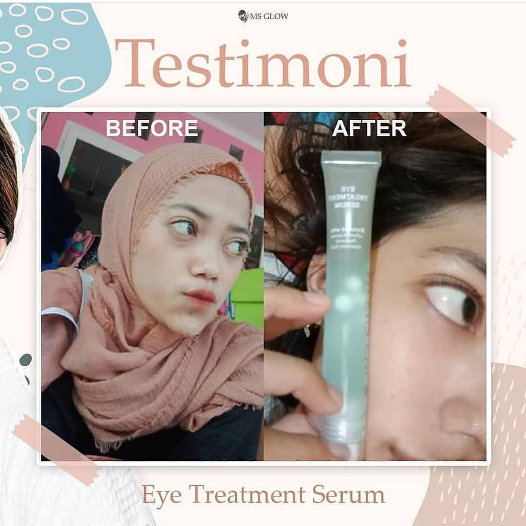 Bye-bye Mata Panda, Testimoni Pemakaian Eye Treatment