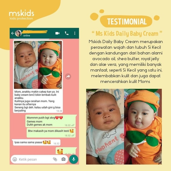 Review Singkat Ms Kids Daily Baby Cream Beserta Kandungannya!
